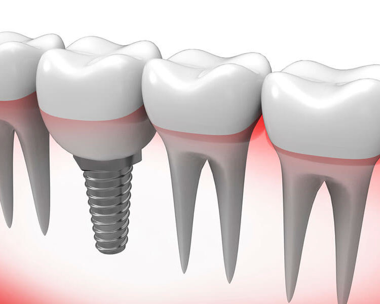 procedure for a single tooth implant